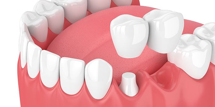 Cantilever bridge placed on prepared tooth