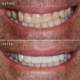 Dr Grace Suda 9 veneers package before and after